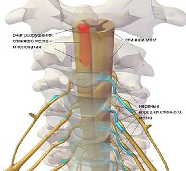Остеохондроз шейного отдела позвоночника симптомы отзывы